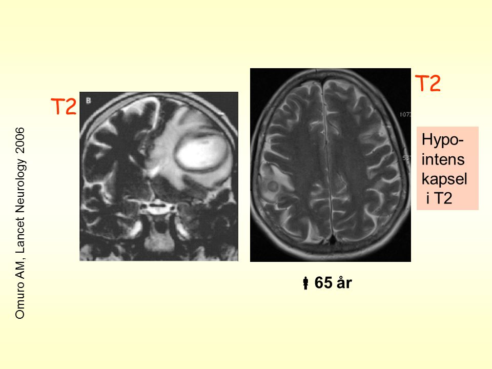 T2 Hypo- intens kapsel i T2 Omuro AM, Lancet Neurology 2006  65 år