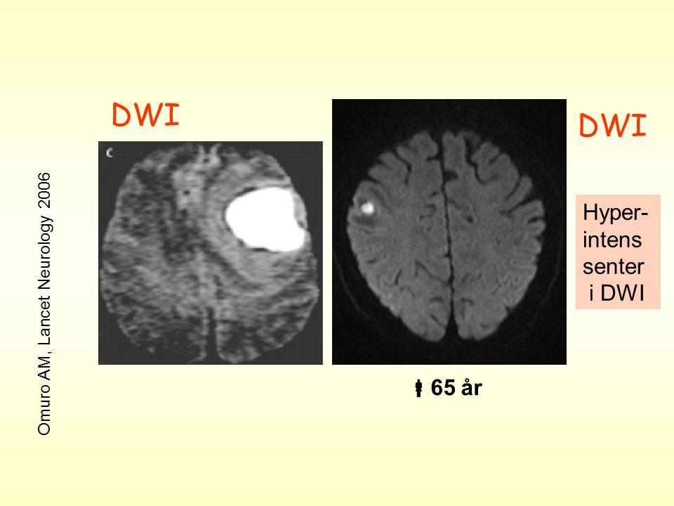DWI Hyper- intens senter i DWI Omuro AM, Lancet Neurology 2006  65 år