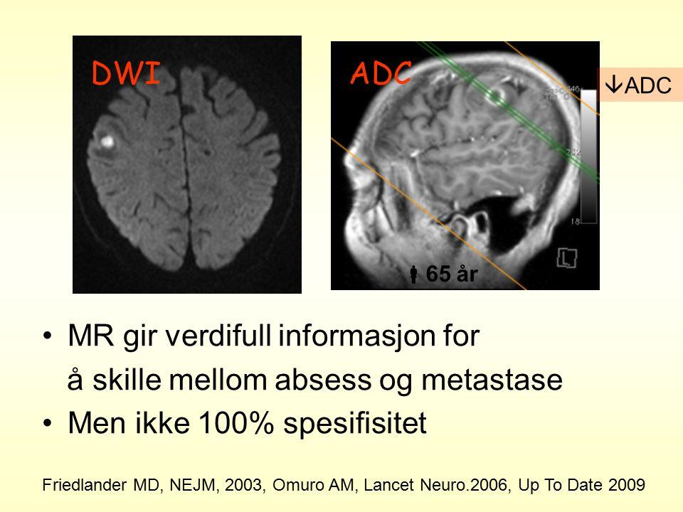 DWIADC Friedlander MD, NEJM, 2003, Omuro AM, Lancet Neuro.2006, Up To Date 2009  ADC  65 år MR gir verdifull informasjon for å skille mellom absess og metastase Men ikke 100% spesifisitet