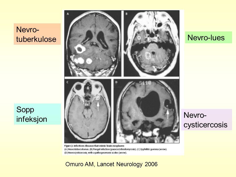 Nevro- tuberkulose Sopp infeksjon Nevro-lues Nevro- cysticercosis Omuro AM, Lancet Neurology 2006