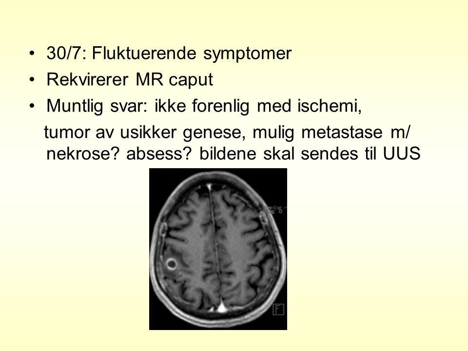 30/7: Fluktuerende symptomer Rekvirerer MR caput Muntlig svar: ikke forenlig med ischemi, tumor av usikker genese, mulig metastase m/ nekrose.