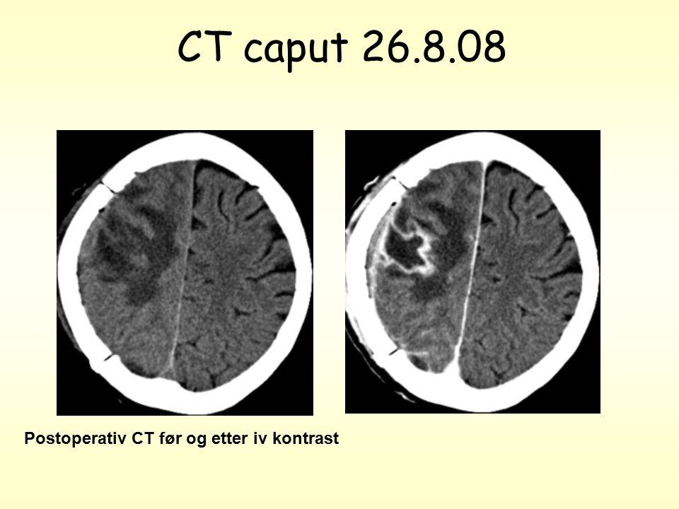 CT caput 26.8.08 Postoperativ CT før og etter iv kontrast