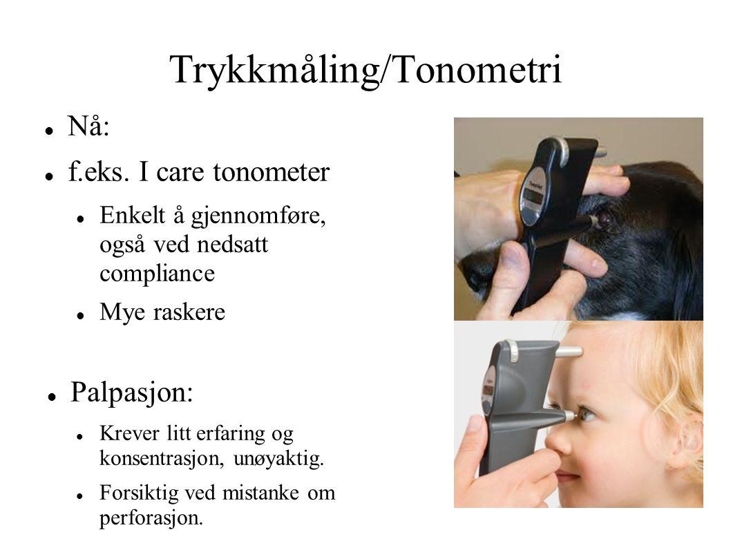 Trykkmåling/Tonometri Nå: f.eks. I care tonometer Enkelt å gjennomføre, også ved nedsatt compliance Mye raskere Palpasjon: Krever litt erfaring og kon