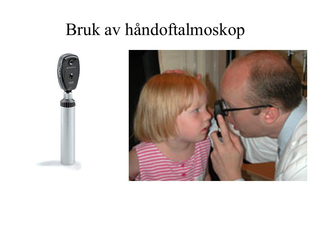 Bruk av håndoftalmoskop
