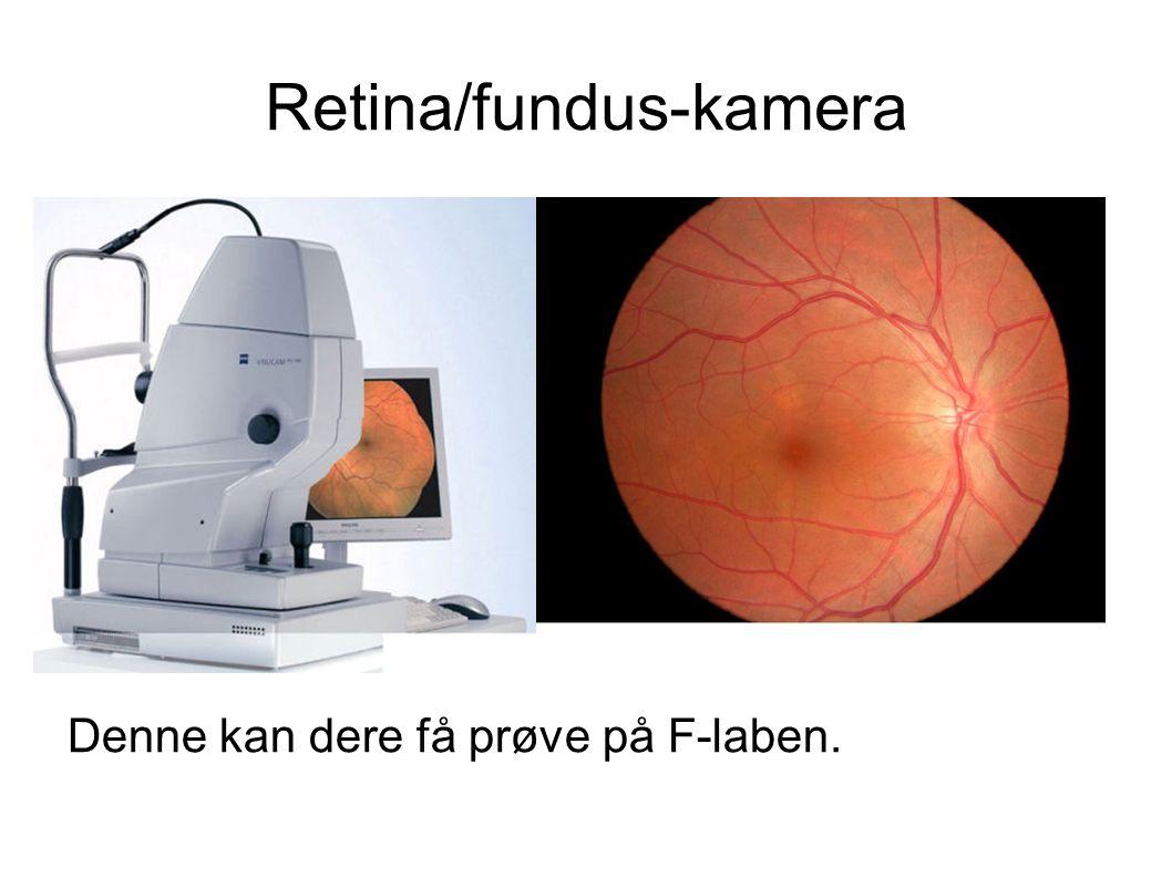 Retina/fundus-kamera Denne kan dere få prøve på F-laben.