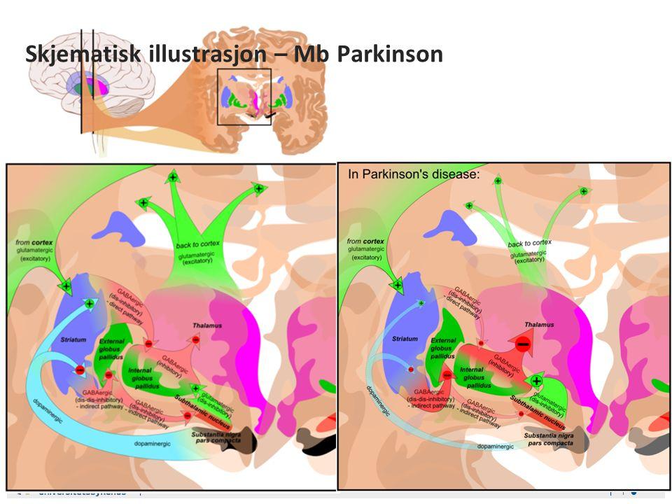 Ass.lege Bjørn Erik Neerland GerIT 8. februar 2011 Skjematisk illustrasjon – Mb Parkinson
