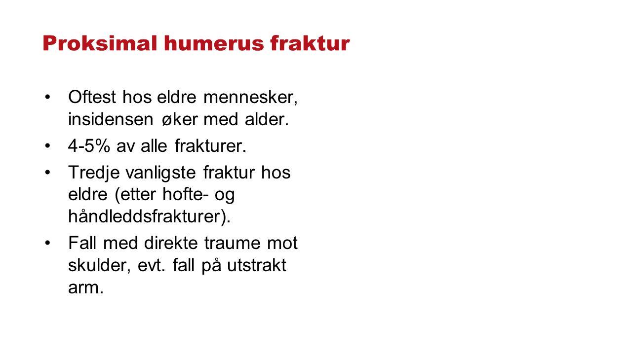 Proksimal humerus fraktur Oftest hos eldre mennesker, insidensen øker med alder. 4-5% av alle frakturer. Tredje vanligste fraktur hos eldre (etter hof