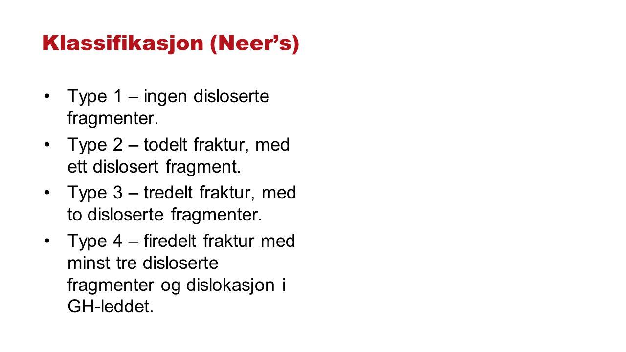 Klassifikasjon (Neer's) Type 1 – ingen disloserte fragmenter. Type 2 – todelt fraktur, med ett dislosert fragment. Type 3 – tredelt fraktur, med to di