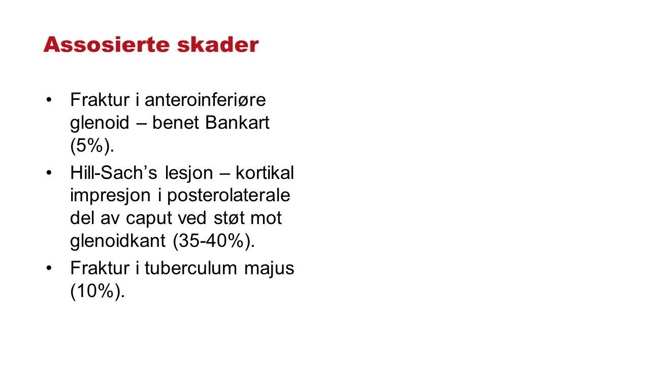Assosierte skader Fraktur i anteroinferiøre glenoid – benet Bankart (5%). Hill-Sach's lesjon – kortikal impresjon i posterolaterale del av caput ved s