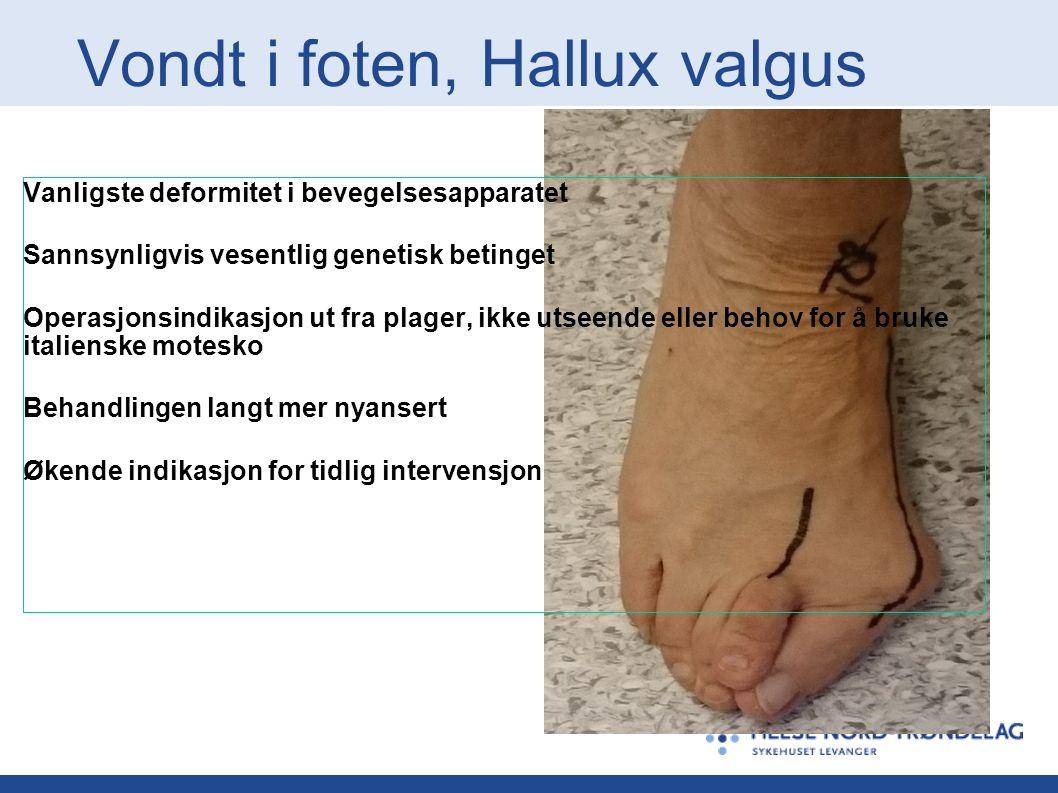 Vondt i foten, Hallux valgus Vanligste deformitet i bevegelsesapparatet Sannsynligvis vesentlig genetisk betinget Operasjonsindikasjon ut fra plager, ikke utseende eller behov for å bruke italienske motesko Behandlingen langt mer nyansert Økende indikasjon for tidlig intervensjon