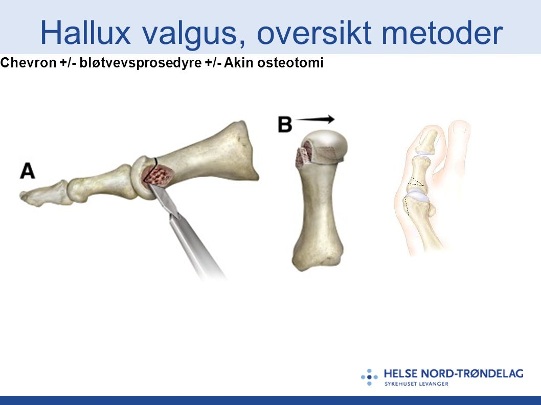 Hallux valgus, oversikt metoder Chevron +/- bløtvevsprosedyre +/- Akin osteotomi