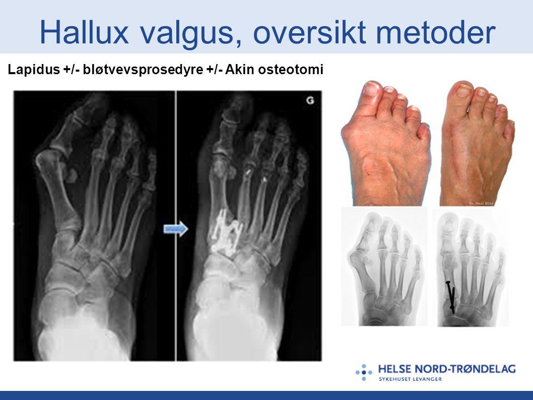 Hallux valgus, oversikt metoder Lapidus +/- bløtvevsprosedyre +/- Akin osteotomi