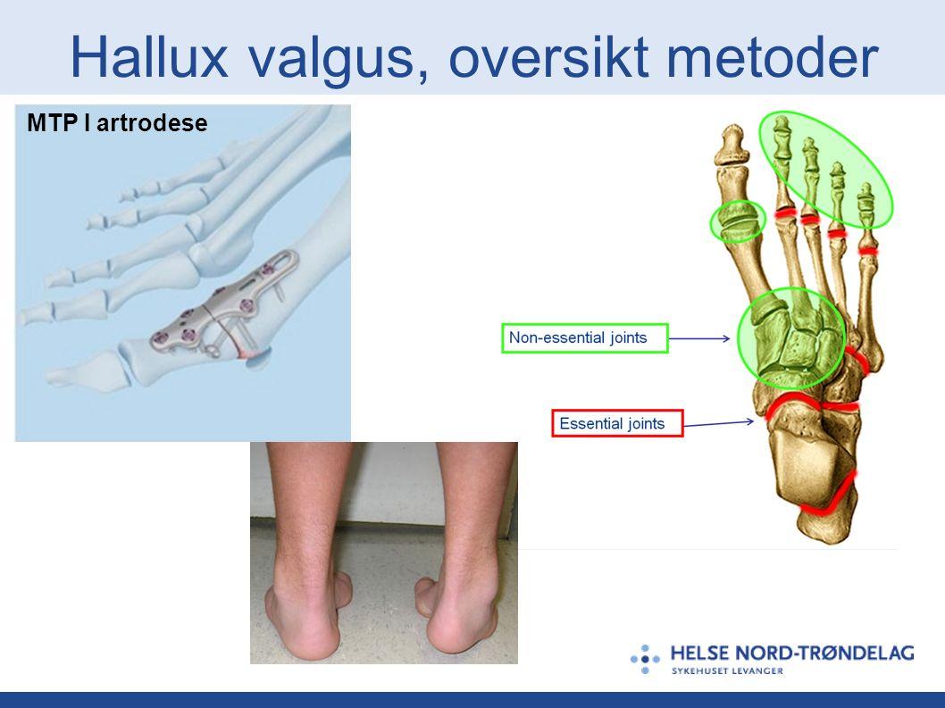 Hallux valgus, oversikt metoder MTP I artrodese