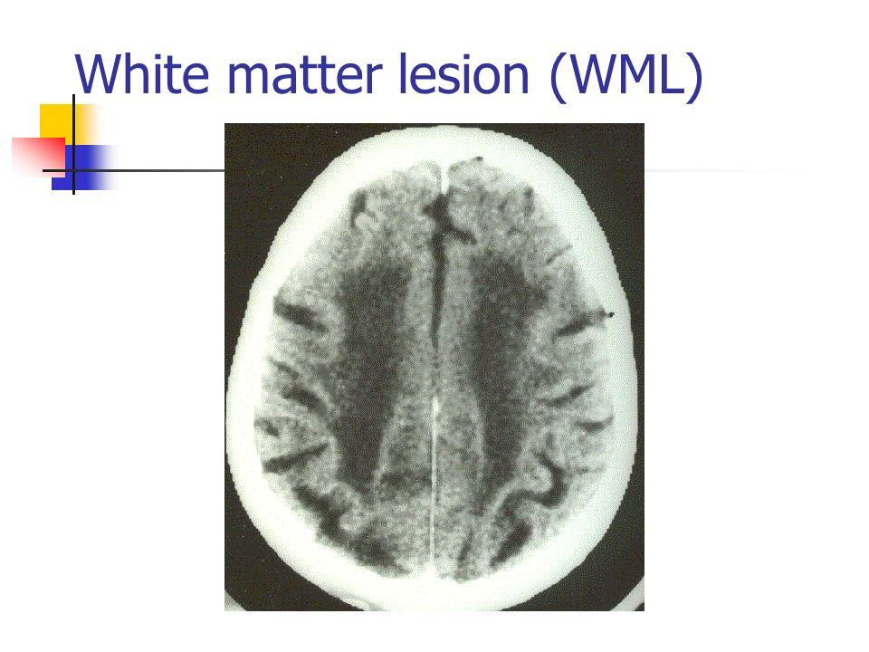 White matter lesion (WML)