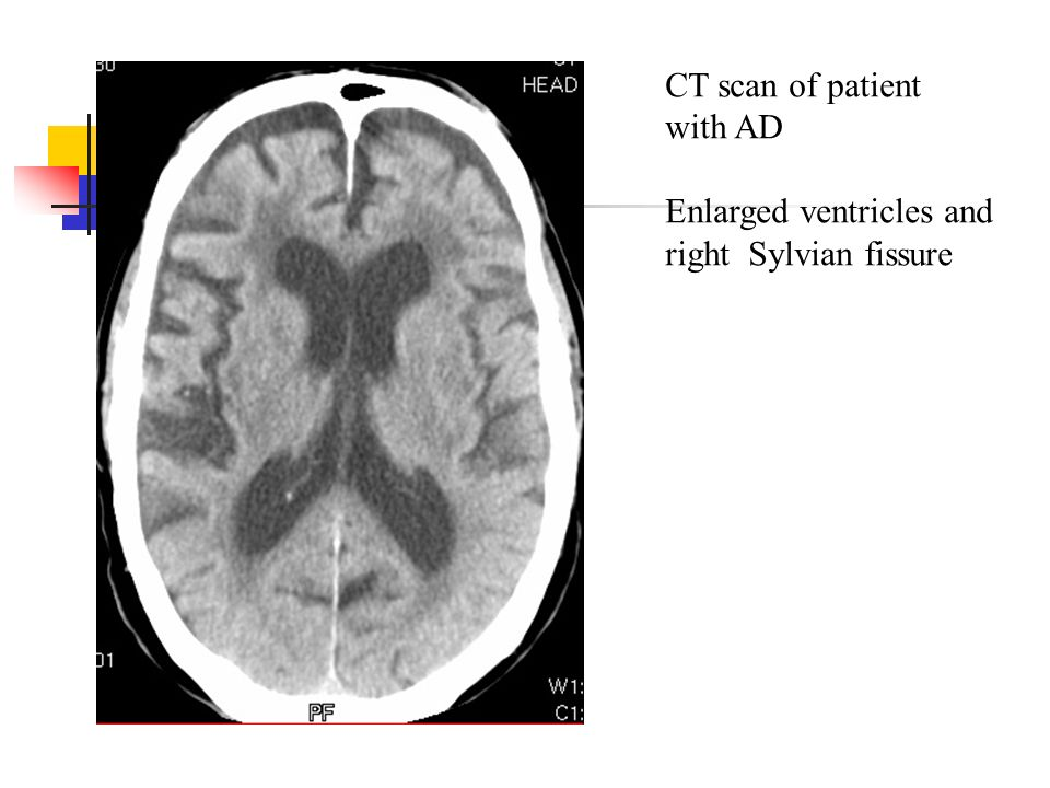 CT scan of patient with AD Enlarged ventricles and right Sylvian fissure