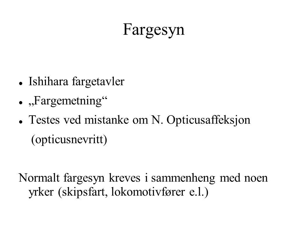 """Fargesyn Ishihara fargetavler """"Fargemetning"""" Testes ved mistanke om N. Opticusaffeksjon (opticusnevritt) Normalt fargesyn kreves i sammenheng med noen"""