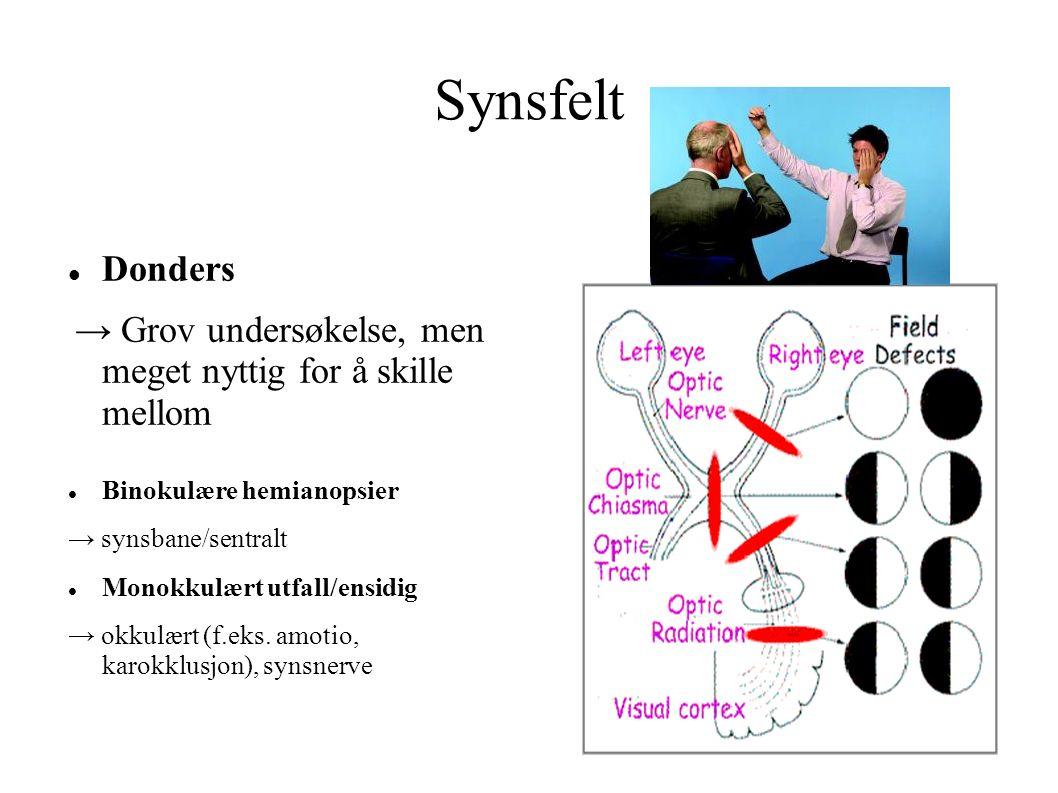 Synsfelt Donders → Grov undersøkelse, men meget nyttig for å skille mellom Binokulære hemianopsier → synsbane/sentralt Monokkulært utfall/ensidig → okkulært (f.eks.