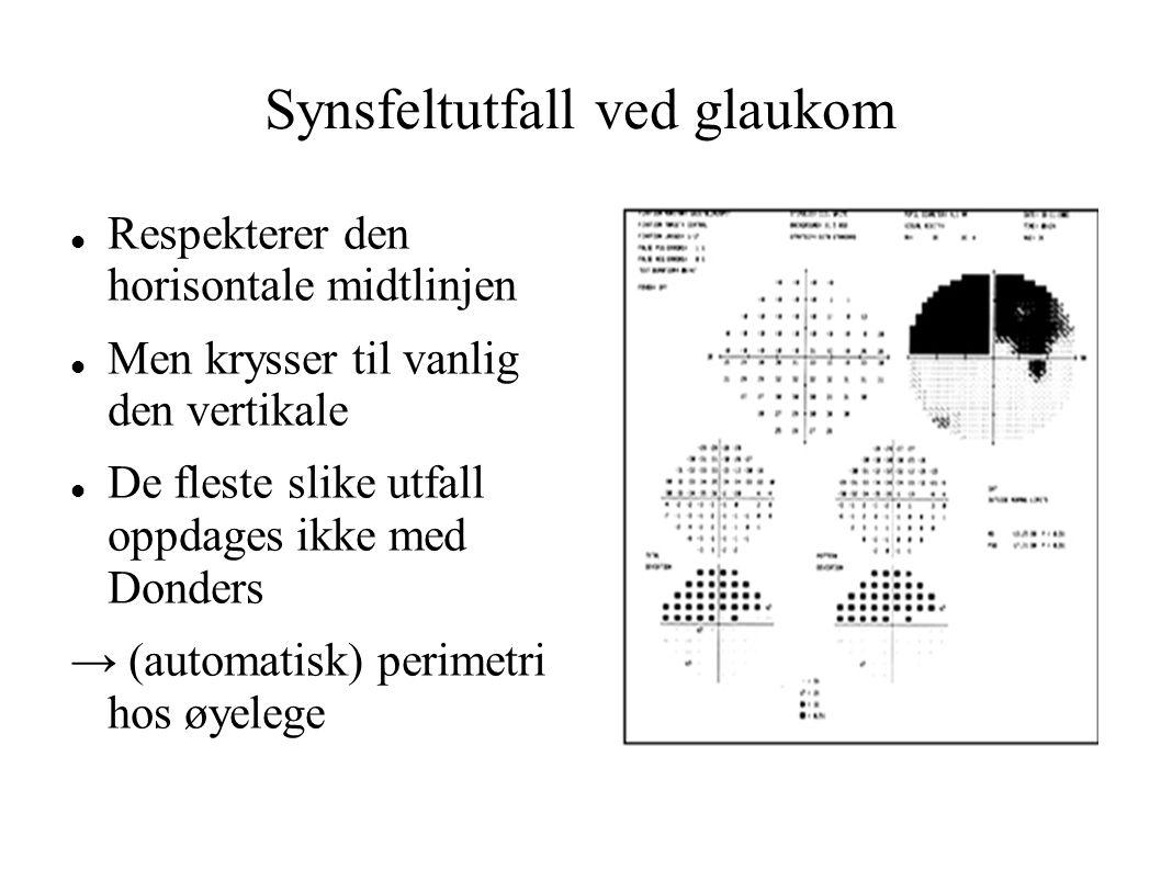 Synsfeltutfall ved glaukom Respekterer den horisontale midtlinjen Men krysser til vanlig den vertikale De fleste slike utfall oppdages ikke med Donders → (automatisk) perimetri hos øyelege