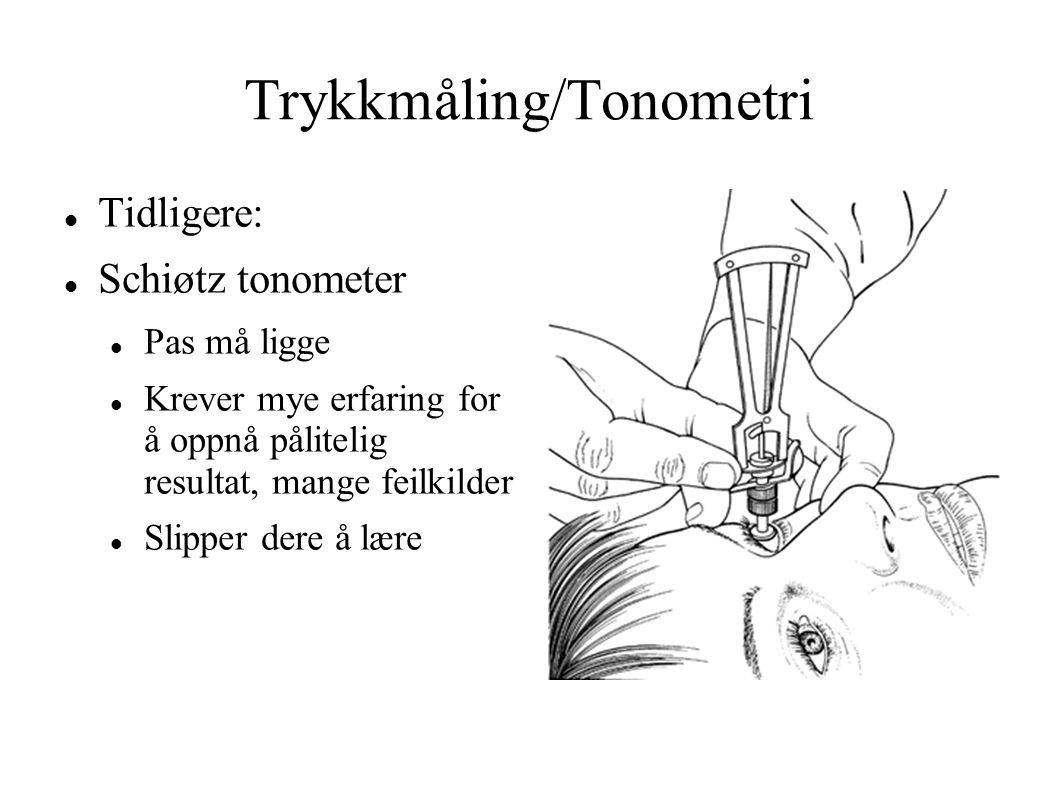 Trykkmåling/Tonometri Tidligere: Schiøtz tonometer Pas må ligge Krever mye erfaring for å oppnå pålitelig resultat, mange feilkilder Slipper dere å lære