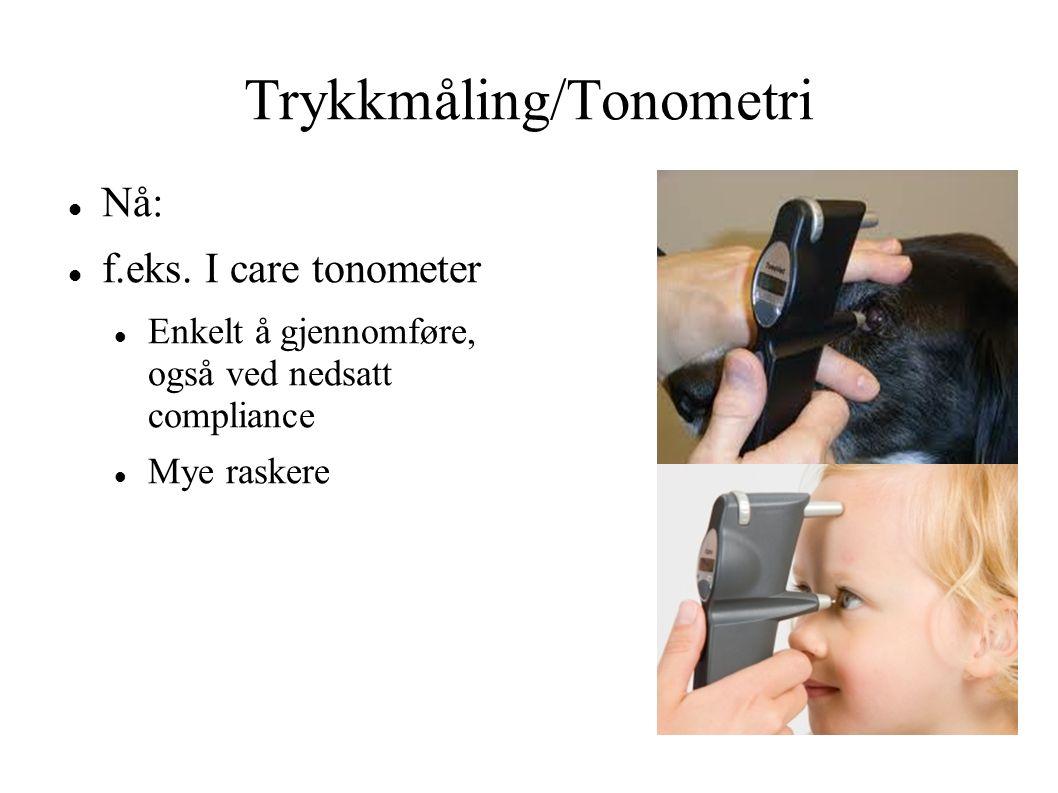 Trykkmåling/Tonometri Nå: f.eks. I care tonometer Enkelt å gjennomføre, også ved nedsatt compliance Mye raskere