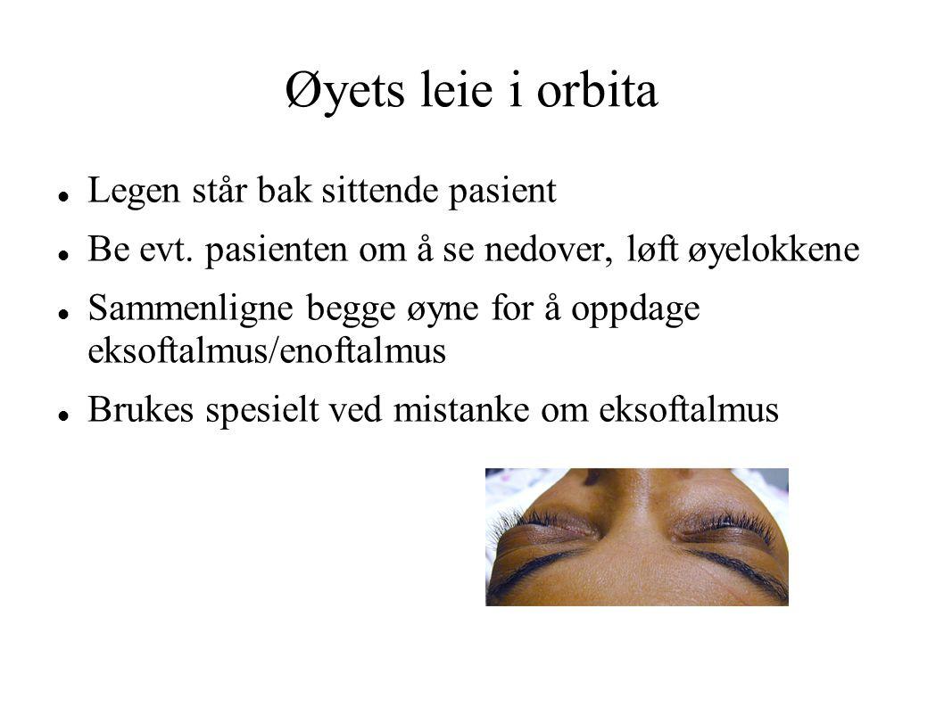 Øyets leie i orbita Legen står bak sittende pasient Be evt. pasienten om å se nedover, løft øyelokkene Sammenligne begge øyne for å oppdage eksoftalmu