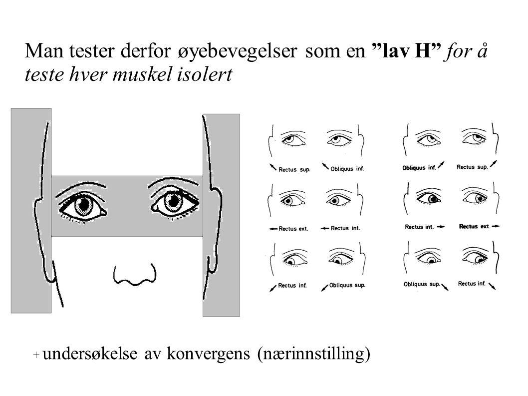 Man tester derfor øyebevegelser som en lav H for å teste hver muskel isolert + undersøkelse av konvergens (nærinnstilling)