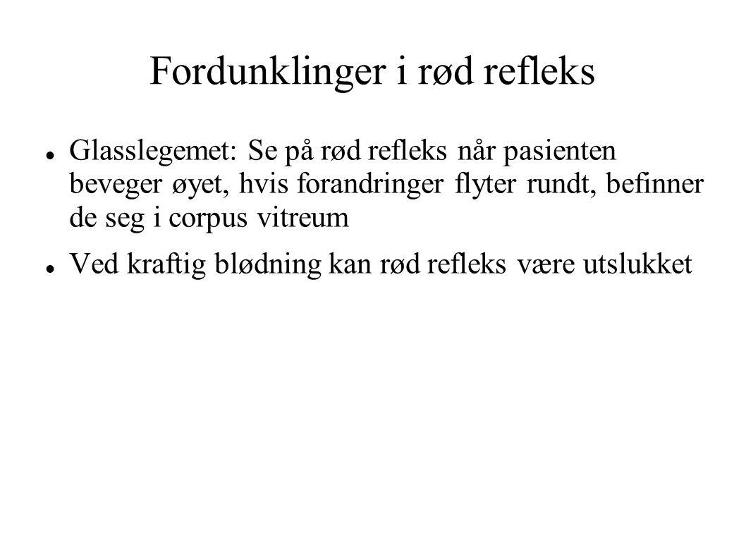 Fordunklinger i rød refleks Glasslegemet: Se på rød refleks når pasienten beveger øyet, hvis forandringer flyter rundt, befinner de seg i corpus vitreum Ved kraftig blødning kan rød refleks være utslukket