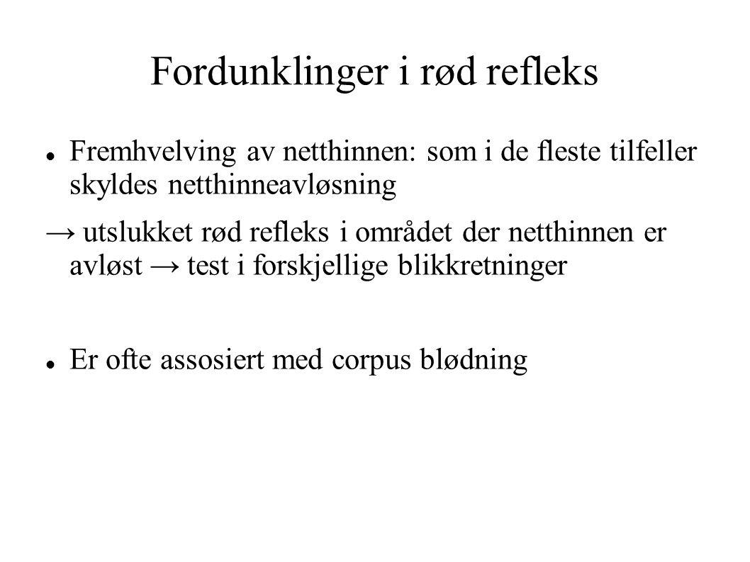 Fordunklinger i rød refleks Fremhvelving av netthinnen: som i de fleste tilfeller skyldes netthinneavløsning → utslukket rød refleks i området der net