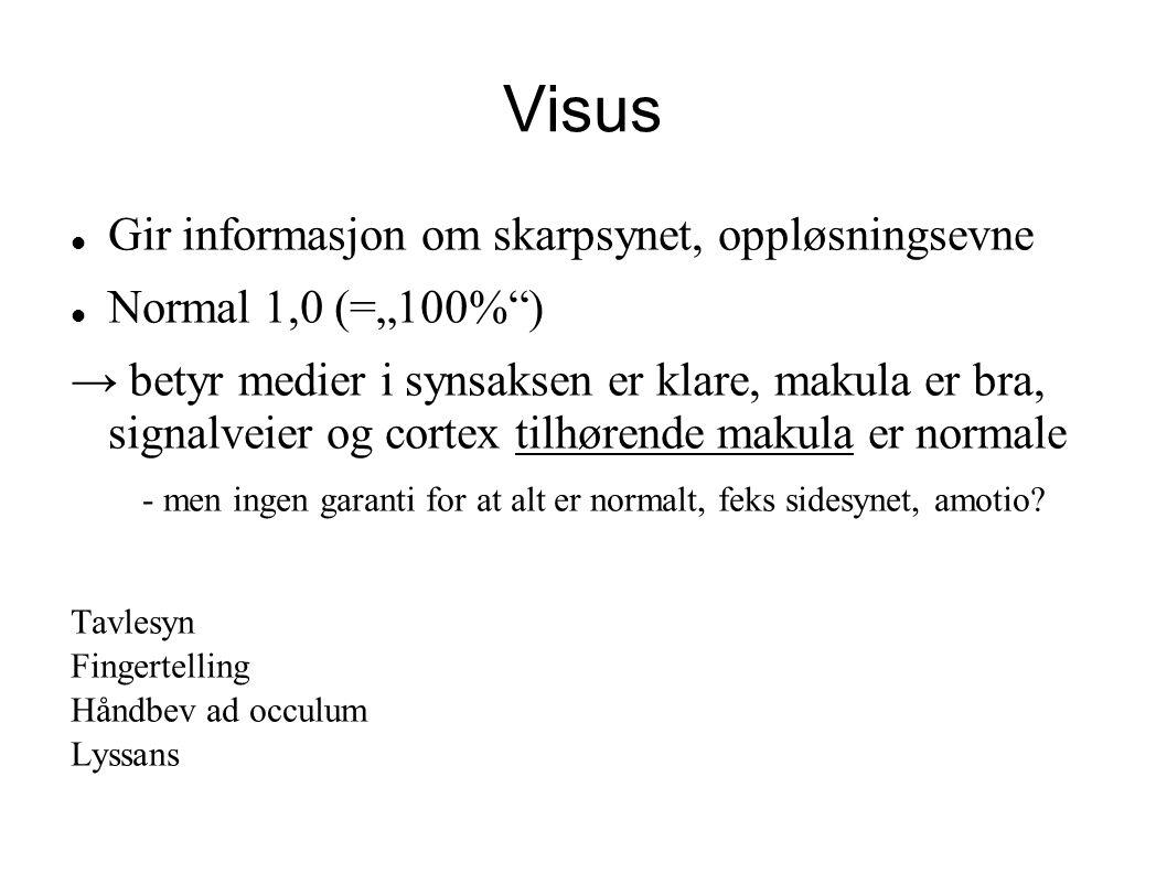 """Visus Gir informasjon om skarpsynet, oppløsningsevne Normal 1,0 (=""""100%"""") → betyr medier i synsaksen er klare, makula er bra, signalveier og cortex ti"""