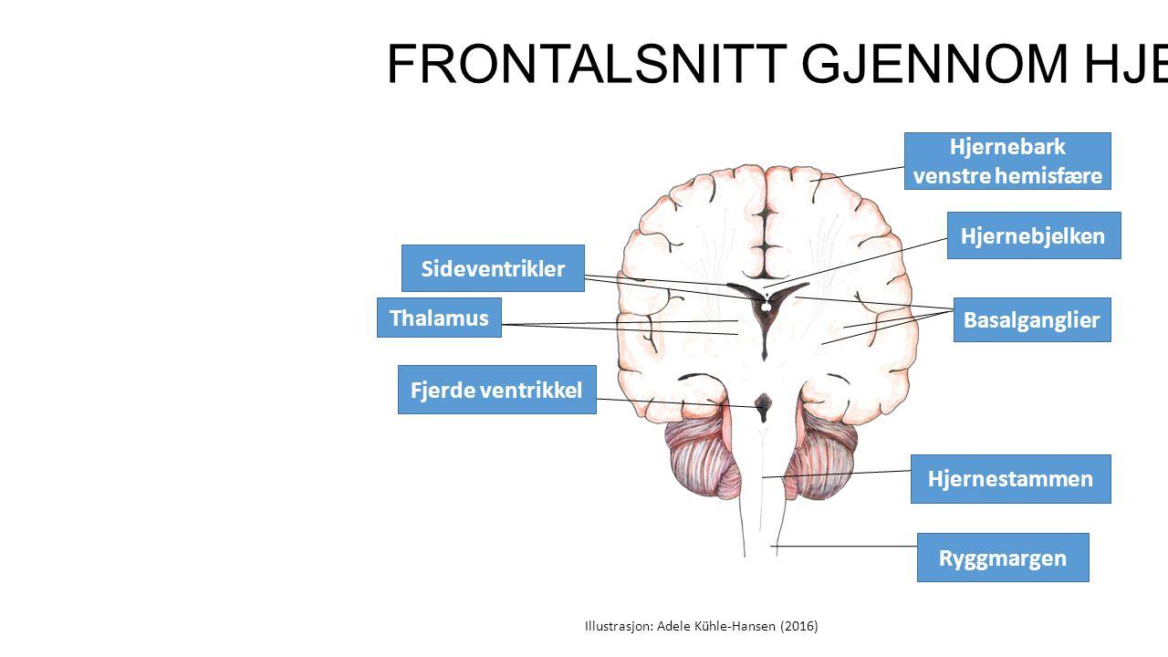 FRONTALSNITT GJENNOM HJERNEN Hjernebark venstre hemisfære Sideventrikler Fjerde ventrikkel Hjernestammen Basalganglier Ryggmargen Illustrasjon: Adele Kühle-Hansen (2016) Hjernebjelken Thalamus