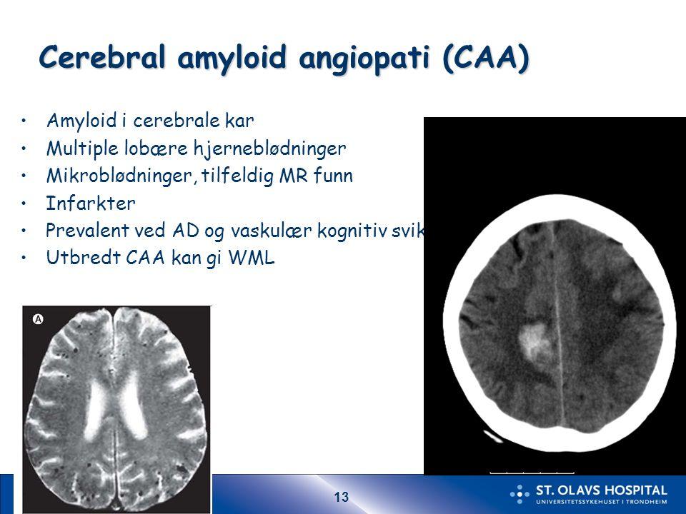 13 Cerebral amyloid angiopati (CAA) Amyloid i cerebrale kar Multiple lobære hjerneblødninger Mikroblødninger, tilfeldig MR funn Infarkter Prevalent ved AD og vaskulær kognitiv svikt Utbredt CAA kan gi WML