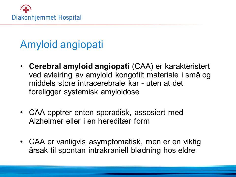 Amyloid angiopati Cerebral amyloid angiopati (CAA) er karakteristert ved avleiring av amyloid kongofilt materiale i små og middels store intracerebrale kar - uten at det foreligger systemisk amyloidose CAA opptrer enten sporadisk, assosiert med Alzheimer eller i en hereditær form CAA er vanligvis asymptomatisk, men er en viktig årsak til spontan intrakraniell blødning hos eldre