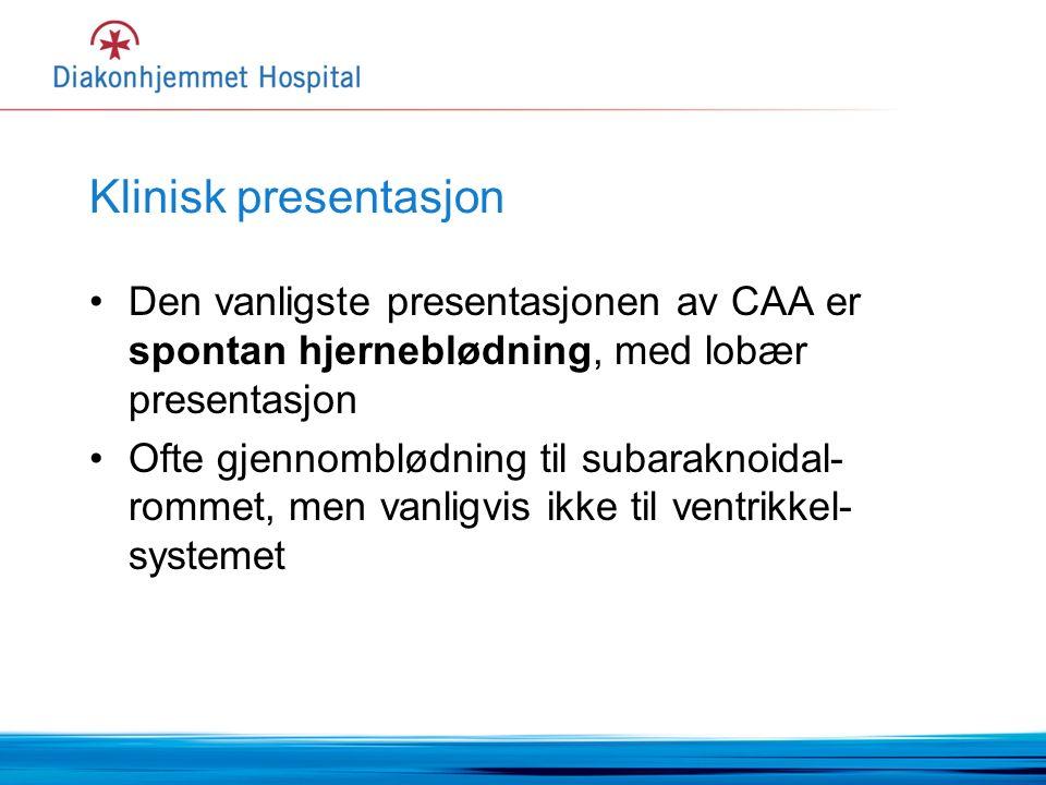 Klinisk presentasjon Den vanligste presentasjonen av CAA er spontan hjerneblødning, med lobær presentasjon Ofte gjennomblødning til subaraknoidal- rommet, men vanligvis ikke til ventrikkel- systemet