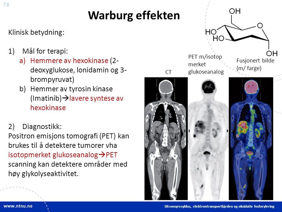 76 Warburg effekten Sitronsyresyklus, elektrontransportkjeden og oksidativ fosforylering Klinisk betydning: 1)Mål for terapi: a)Hemmere av hexokinase (2- deoxyglukose, lonidamin og 3- brompyruvat) b)Hemmer av tyrosin kinase (Imatinib)  lavere syntese av hexokinase 2)Diagnostikk: Positron emisjons tomografi (PET) kan brukes til å detektere tumorer vha isotopmerket glukoseanalog  PET scanning kan detektere områder med høy glykolyseaktivitet.