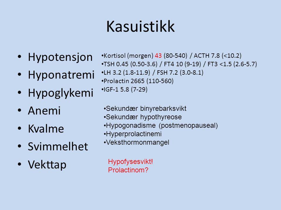 Kasuistikk Hypotensjon Hyponatremi Hypoglykemi Anemi Kvalme Svimmelhet Vekttap Kortisol (morgen) 43 (80-540) / ACTH 7.8 (<10.2) TSH 0.45 (0.50-3.6) / FT4 10 (9-19) / FT3 <1.5 (2.6-5.7) LH 3.2 (1.8-11.9) / FSH 7.2 (3.0-8.1) Prolactin 2665 (110-560) IGF-1 5.8 (7-29) Sekundær binyrebarksvikt Sekundær hypothyreose Hypogonadisme (postmenopauseal) Hyperprolactinemi Veksthormonmangel Hypofysesvikt.