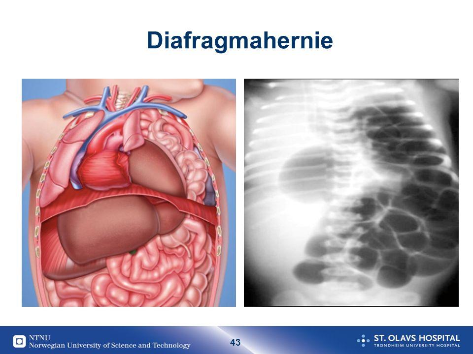 43 Diafragmahernie