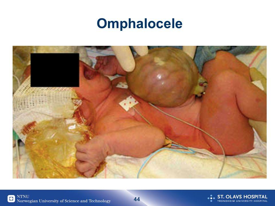 44 Omphalocele