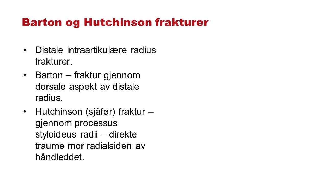 Barton og Hutchinson frakturer Distale intraartikulære radius frakturer.