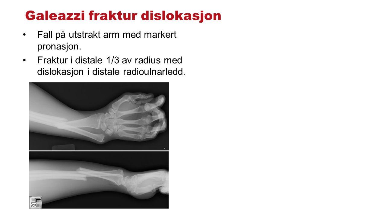 Galeazzi fraktur dislokasjon Fall på utstrakt arm med markert pronasjon.