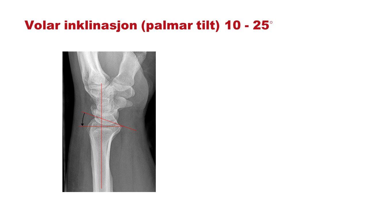 Colles fraktur Mest vanlig fraktur i hånledd.Fall på utstrakt arm med dorsiflektert hånd.