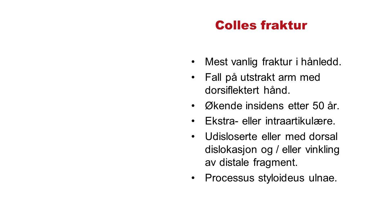 Colles fraktur Mest vanlig fraktur i hånledd. Fall på utstrakt arm med dorsiflektert hånd.