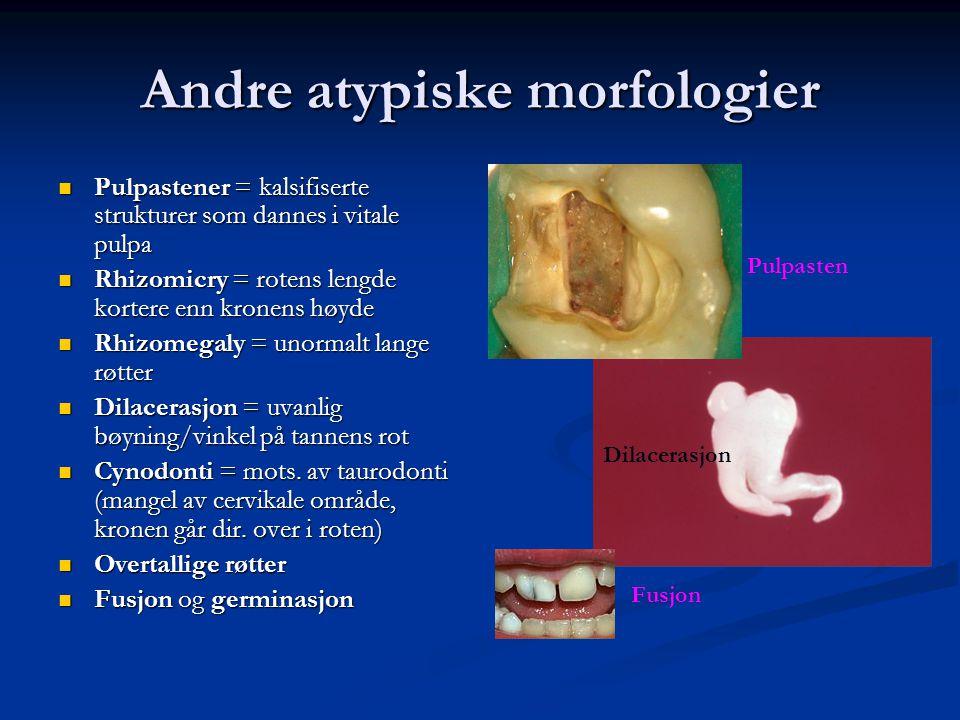 Andre atypiske morfologier Pulpastener = kalsifiserte strukturer som dannes i vitale pulpa Pulpastener = kalsifiserte strukturer som dannes i vitale p