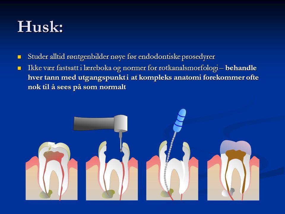 Husk: Studer alltid røntgenbilder nøye før endodontiske prosedyrer Studer alltid røntgenbilder nøye før endodontiske prosedyrer Ikke vær fastsatt i læ