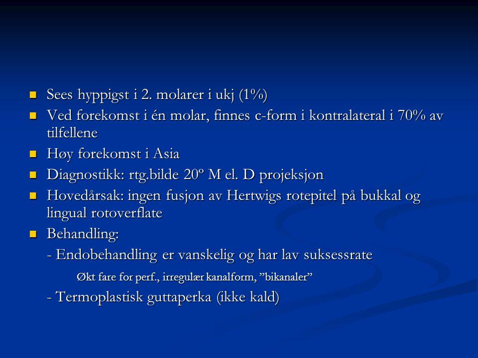Sees hyppigst i 2. molarer i ukj (1%) Sees hyppigst i 2. molarer i ukj (1%) Ved forekomst i én molar, finnes c-form i kontralateral i 70% av tilfellen