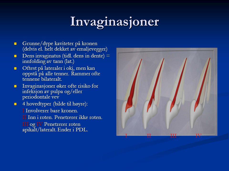 Invaginasjoner Grunne/dype kaviteter på kronen (delvis el. helt dekket av emaljevegger) Grunne/dype kaviteter på kronen (delvis el. helt dekket av ema