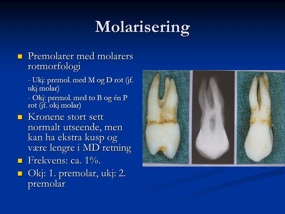 Molarisering Premolarer med molarers rotmorfologi Premolarer med molarers rotmorfologi - Ukj: premol. med M og D rot (jf. ukj molar) - Okj: premol. me