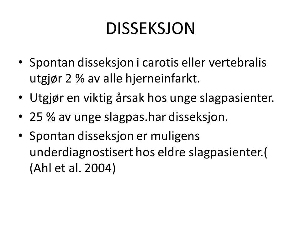 DISSEKSJON • Spontan disseksjon i carotis eller vertebralis utgjør 2 % av alle hjerneinfarkt. • Utgjør en viktig årsak hos unge slagpasienter. • 25 %