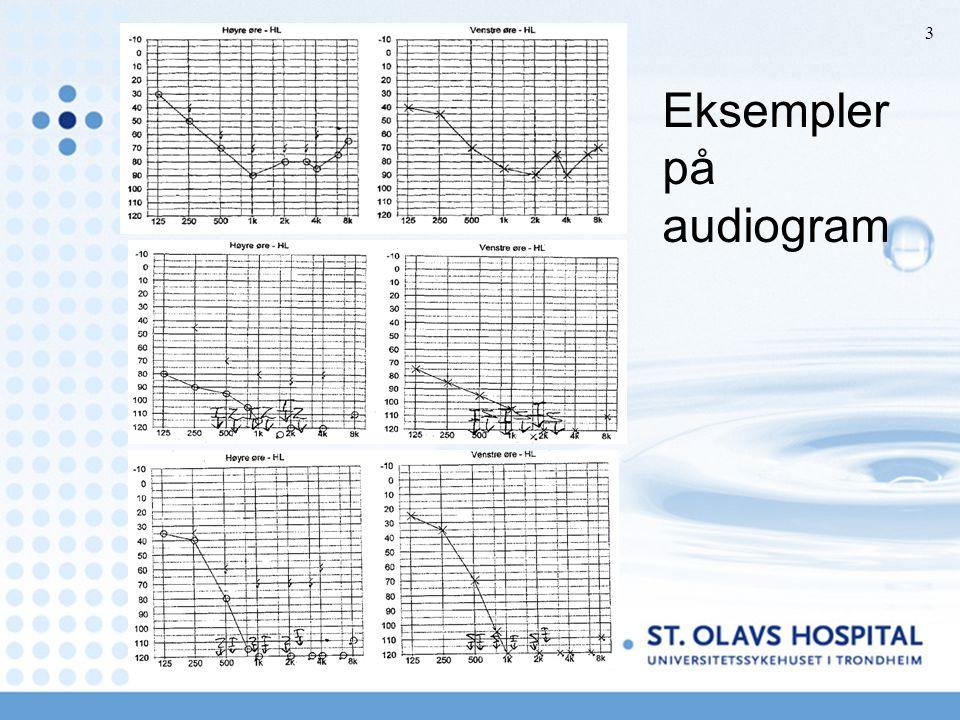 Eksempler på audiogram EU 09 3