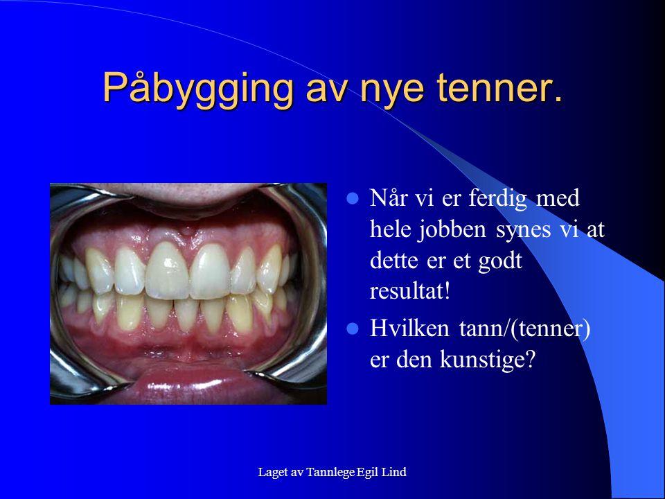 Laget av Tannlege Egil Lind Påbygging av nye tenner.  Når vi er ferdig med hele jobben synes vi at dette er et godt resultat!  Hvilken tann/(tenner)