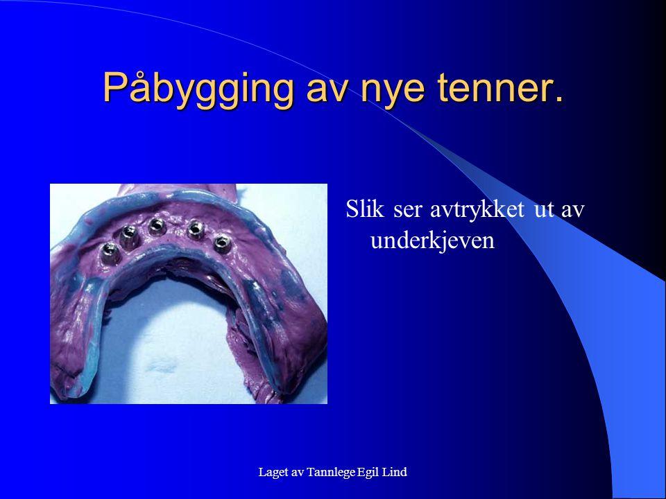 Laget av Tannlege Egil Lind Påbygging av nye tenner. Slik ser avtrykket ut av underkjeven